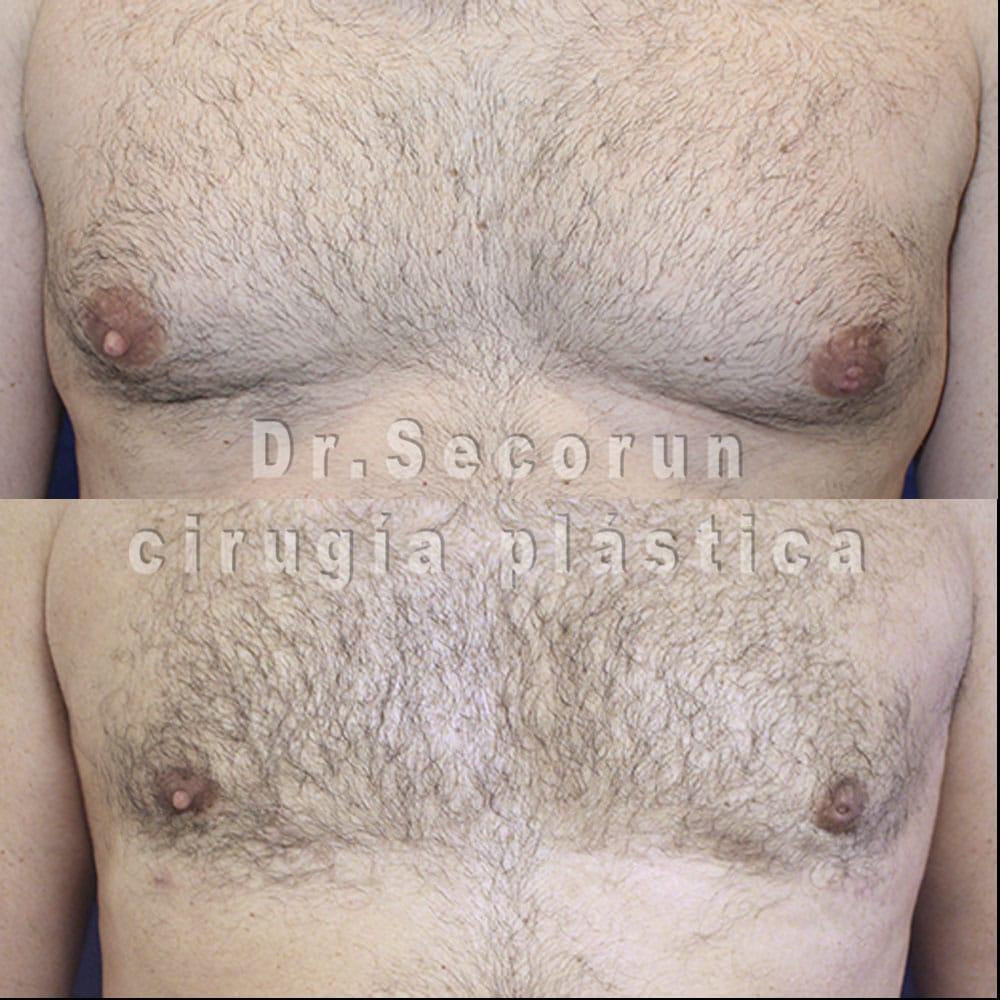 ginecomastia 2020 22 Ginecomastia | Eliminación de pecho en hombres