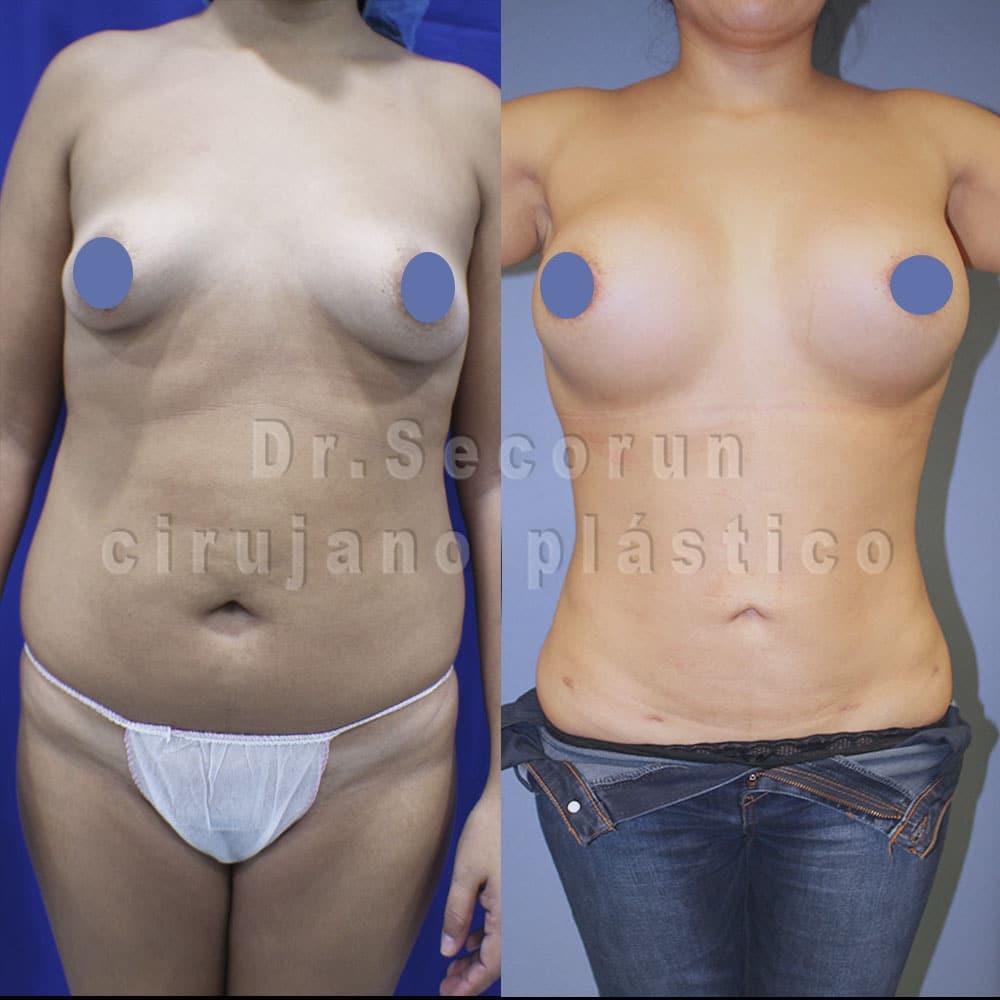 liposuccion 2020 2 1 Liposucción y Lipoescultura