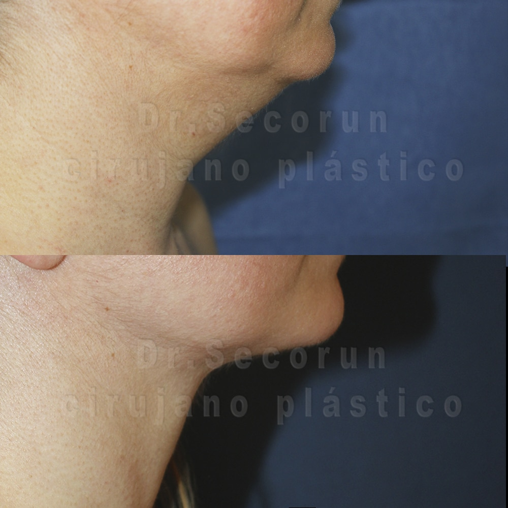 liposuccion cervical 2020 1 1 Liposucción de Papada