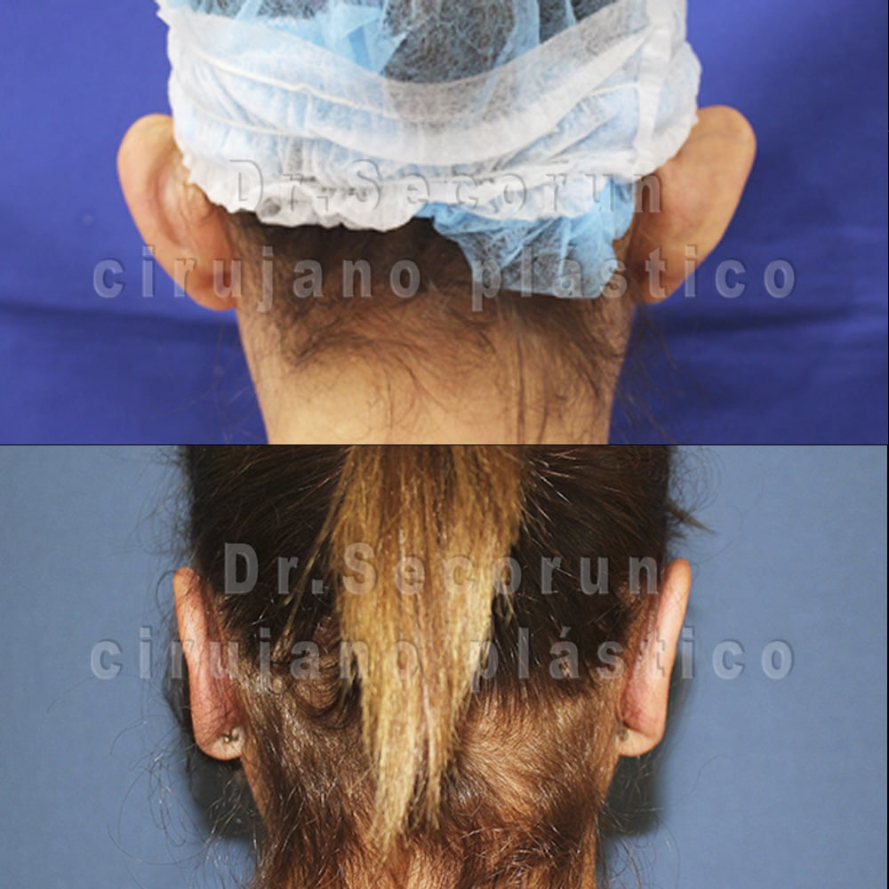 otoplastia 2020 1 1 Otoplastia   Operación de orejas