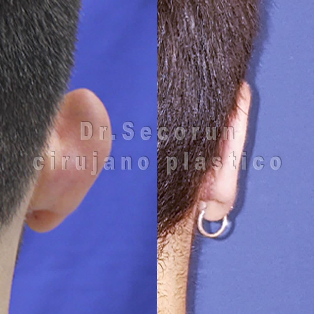 otoplastia 2020 2 2 Otoplastia   Operación de orejas